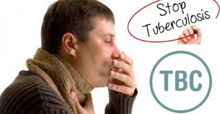 Gandeng Puluhan LAZ, Dompet Dhuafa Kembali Gelar FGD Tuntaskan TBC